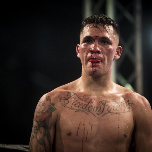 """""""Boxer injury"""" stock image"""