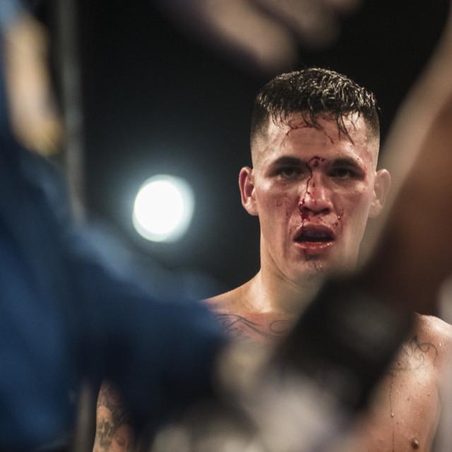 """""""Boxing injury"""" stock image"""