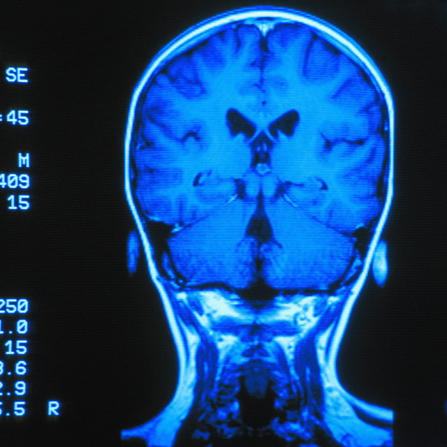 """""""Gyro Scan Of The Back Of Brain"""" stock image"""