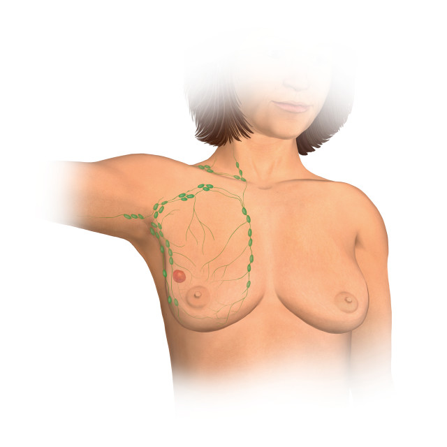 """""""Anterior View Female Anatomy Showing Breast Tissue With A Tumor"""" stock image"""