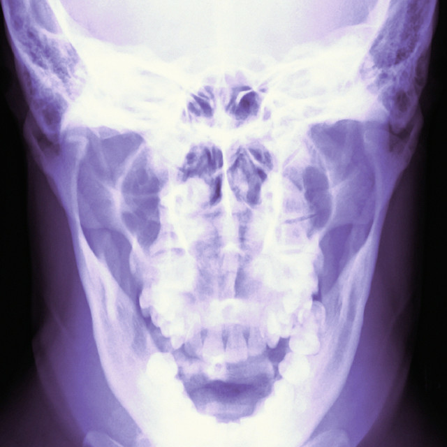 """Normal skull, X-ray"" stock image"