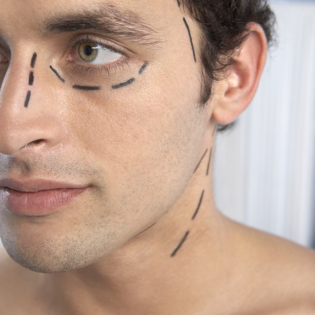 """""""Cosmetic surgery"""" stock image"""