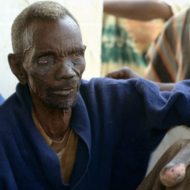 """Patient suffering from leprosy attending a clinic in The Gambia"" stock image"