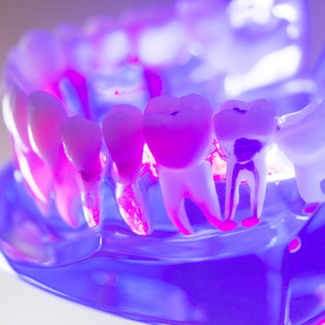 """""""Dental healthy teeth model"""" stock image"""