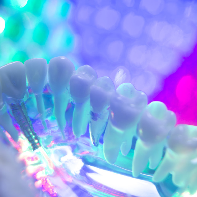 """Dentist teeth model"" stock image"