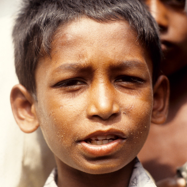 """Portrait of a child; a survivor of the 1991 cyclone. The 1991 cyclone was one..."" stock image"
