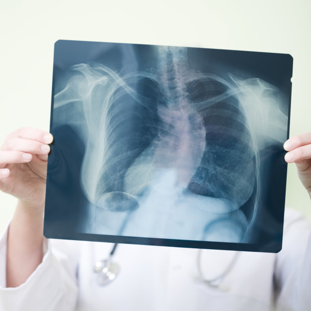 """Scoliosis diagnosis"" stock image"