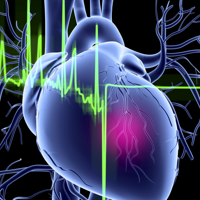 """""""Heart attack and ECG trace"""" stock image"""