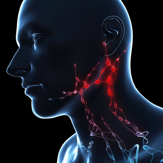 """""""Inflamed lymph nodes, conceptual artwork"""" stock image"""