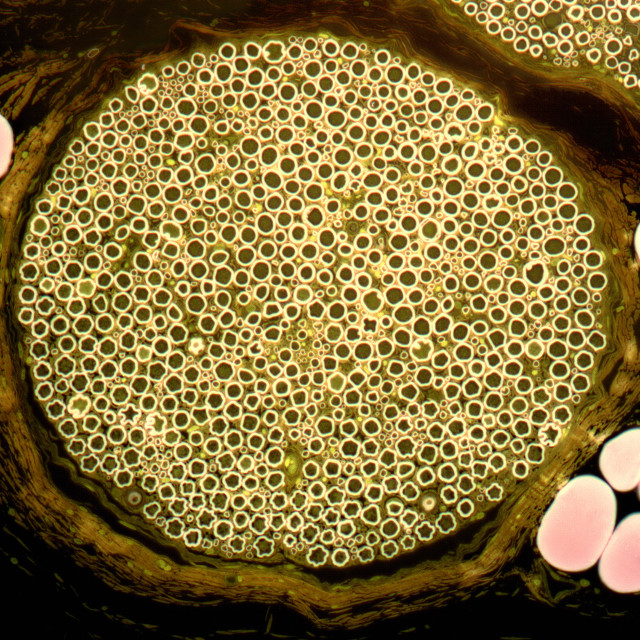 """Nerve bundle, light micrograph"" stock image"