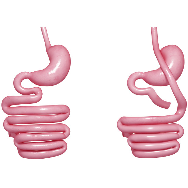 """Gastric bypass, artwork"" stock image"