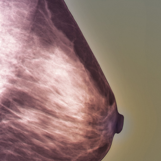 """Normal mammogram"" stock image"