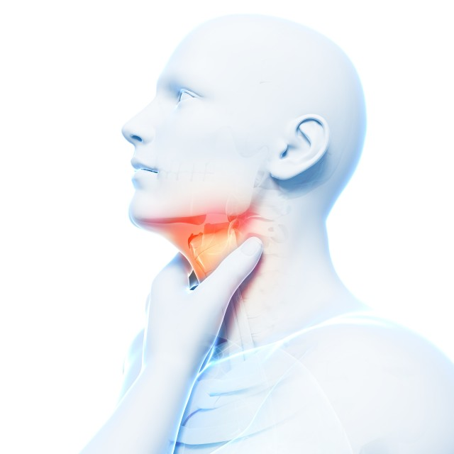 """Sore throat, artwork"" stock image"