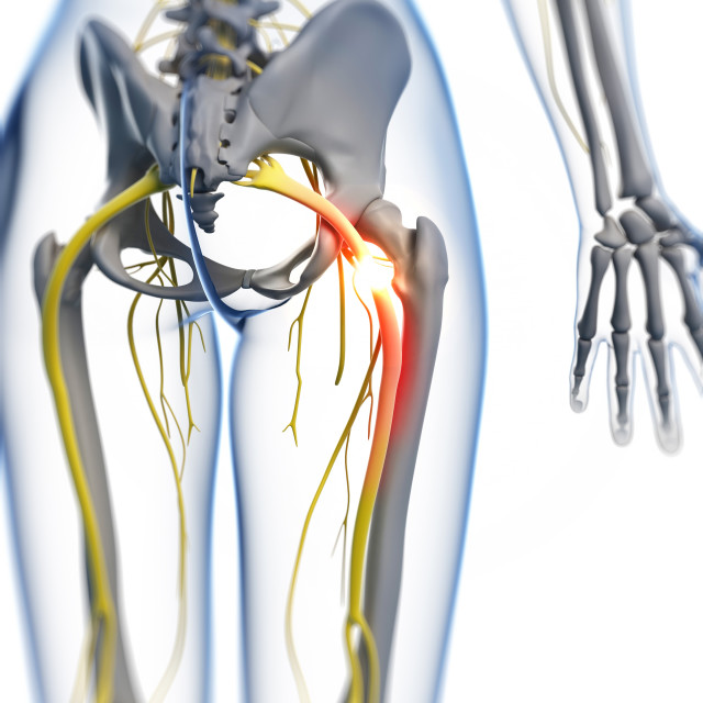 """Painful sciatic nerve, artwork"" stock image"