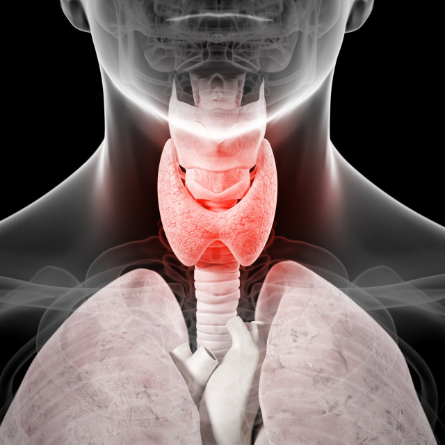 """""""Inflamed thyroid, artwork"""" stock image"""