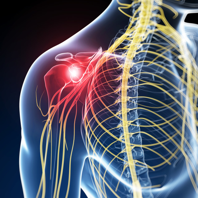 """Human nerve pain, artwork"" stock image"