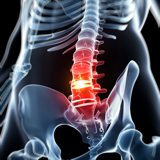 """""""Human spine with slipped disc, artwork"""" stock image"""