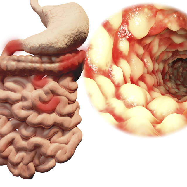 """Crohn's disease, illustration"" stock image"