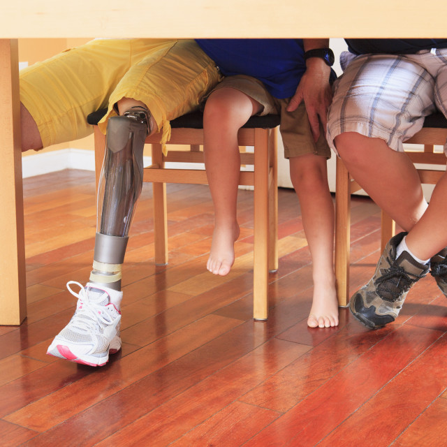 """""""Grandmother with a prosthetic leg"""" stock image"""