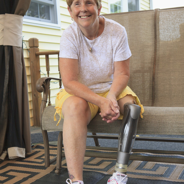 """""""Woman with a prosthetic leg sitting"""" stock image"""