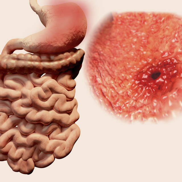 """Gastric ulcer, illustration"" stock image"