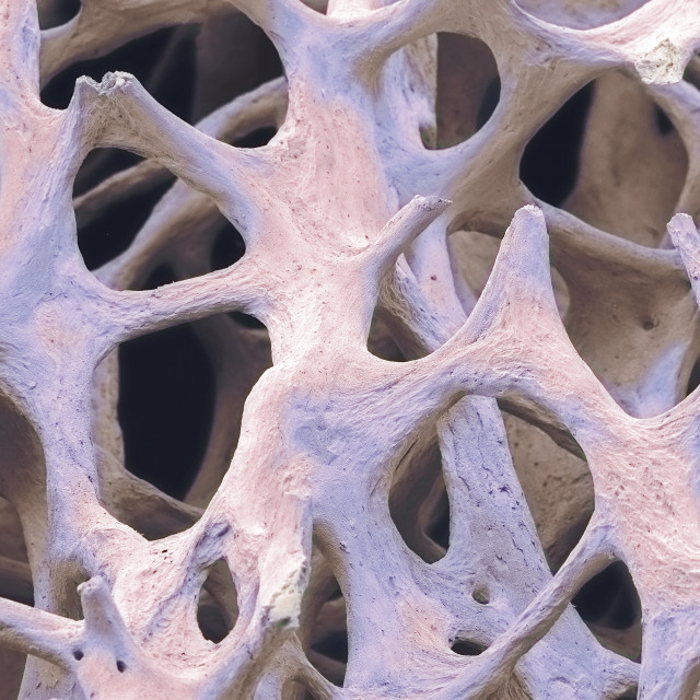 """Bone tissue, SEM"" stock image"