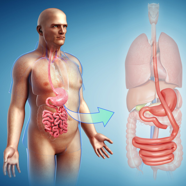 """Gastric bypass, illustration"" stock image"
