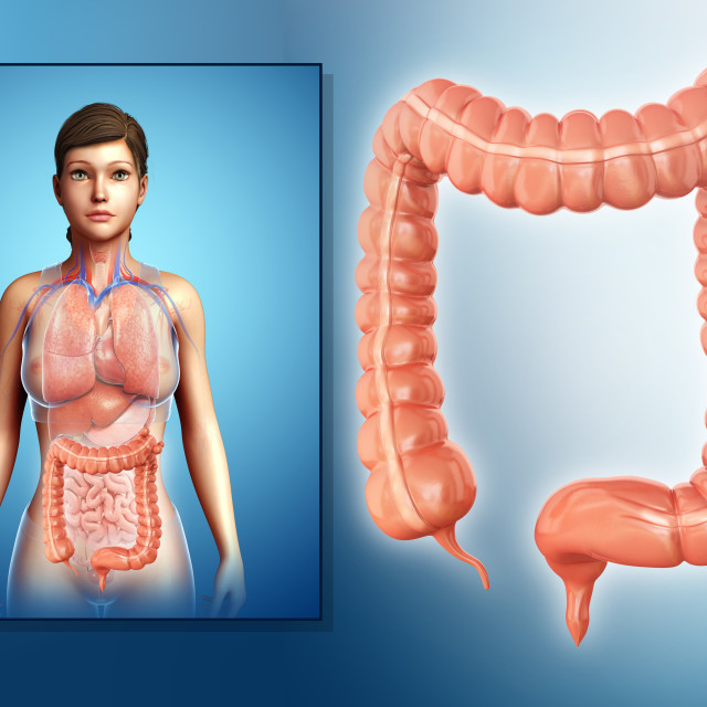 """""""Diverticulosis, illustration"""" stock image"""