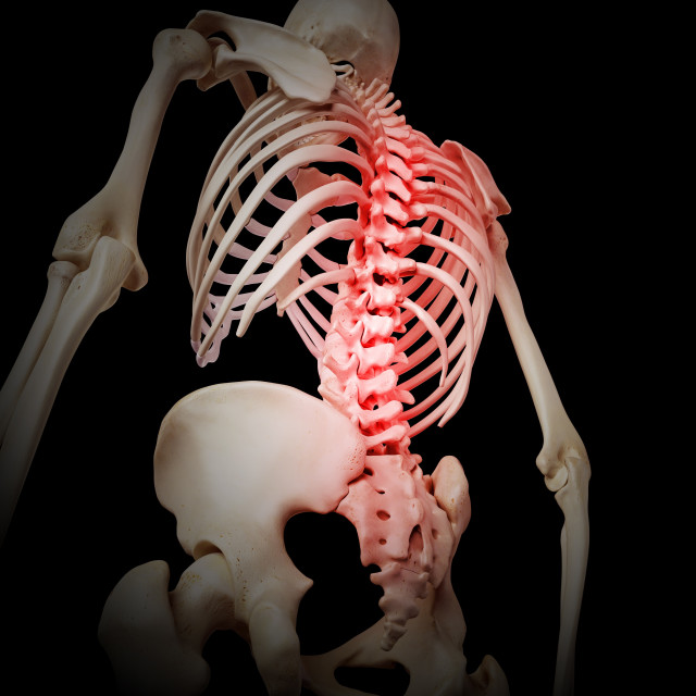 """""""Inflammation of human spine"""" stock image"""