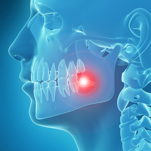 """Human tooth pain, illustration"" stock image"