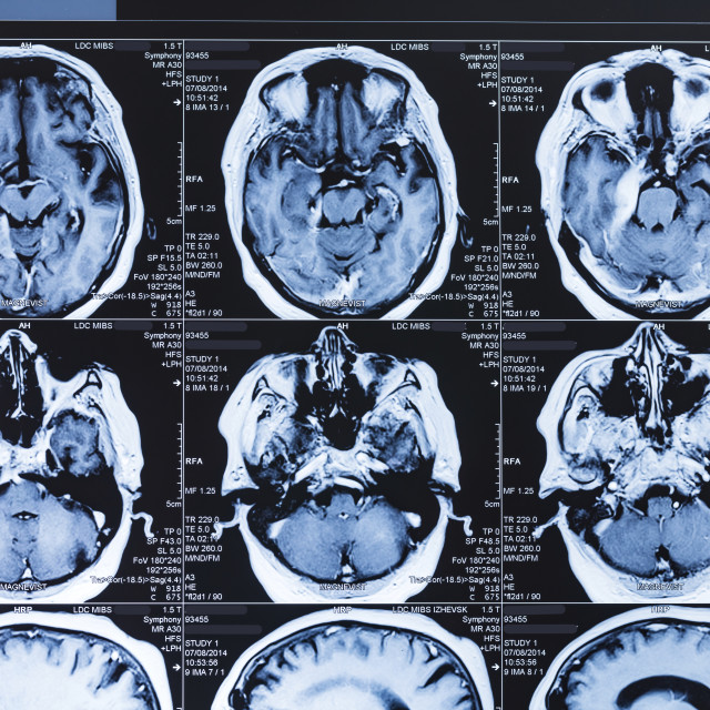 """""""MRI scans of the human brain"""" stock image"""