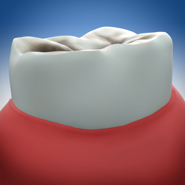 """Molar tooth decay, illustration"" stock image"