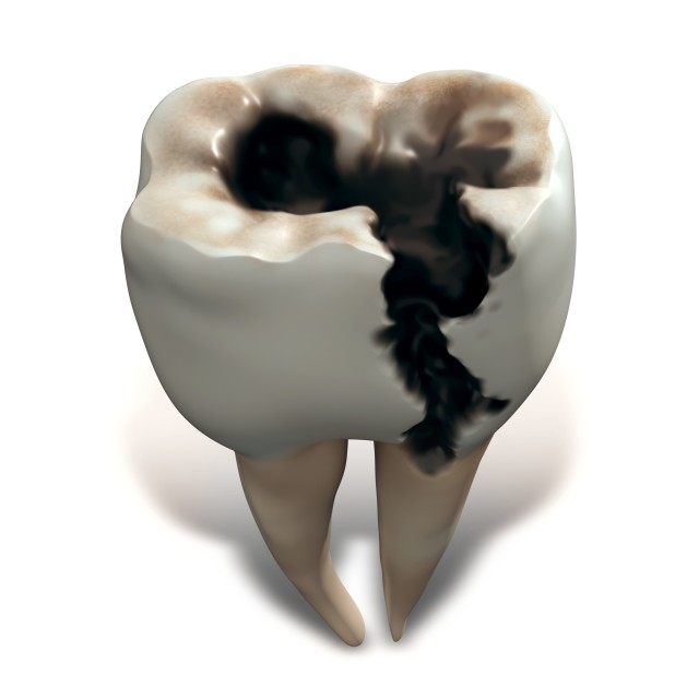 """Molar tooth decay"" stock image"