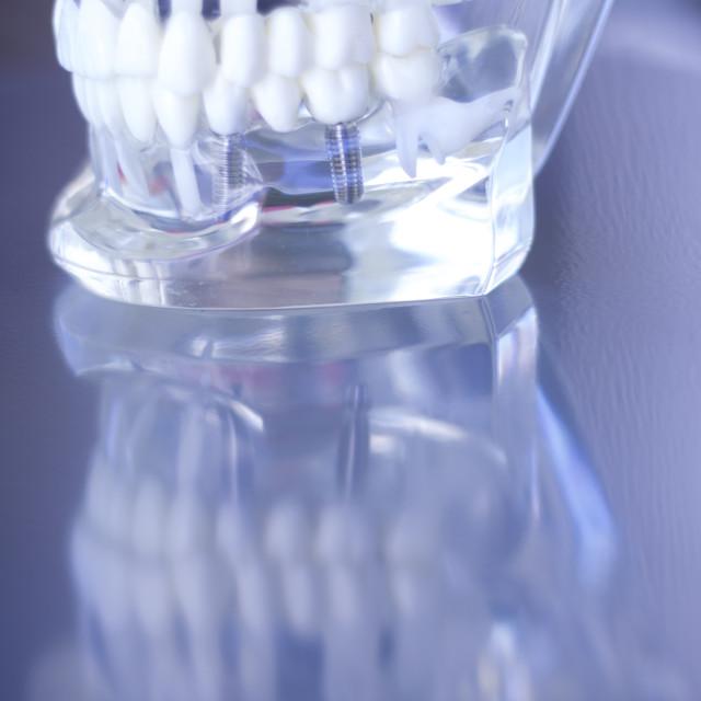 """Dentsts dental teeth model"" stock image"