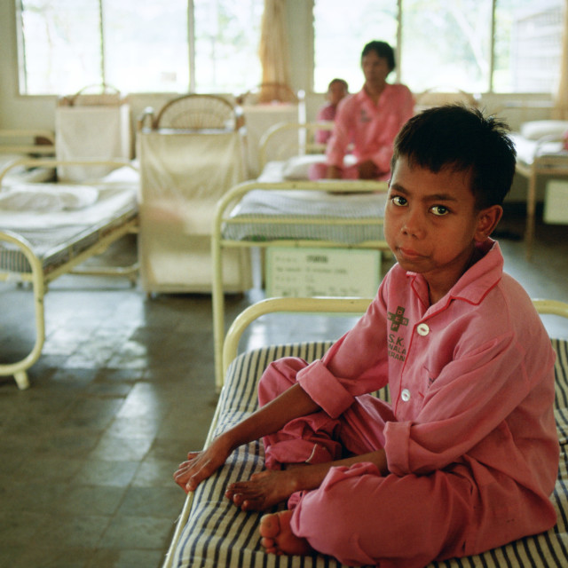 """A boy suffering from leprosy is cared for as a patient in the Sitanala..."" stock image"
