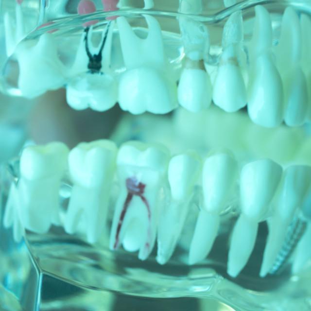 """Dental teeth mouth model"" stock image"