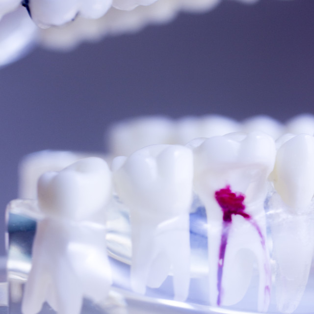 """Dental teeth mouth model"" stock image"