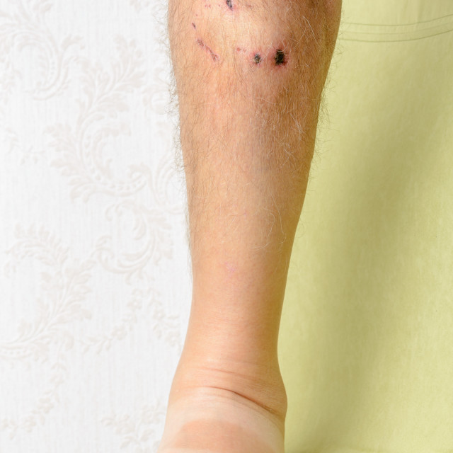 """Traces of dog bites to the leg"" stock image"