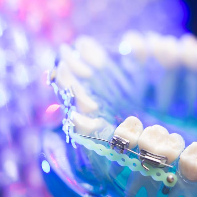 """""""Dental teeth metal brackets"""" stock image"""