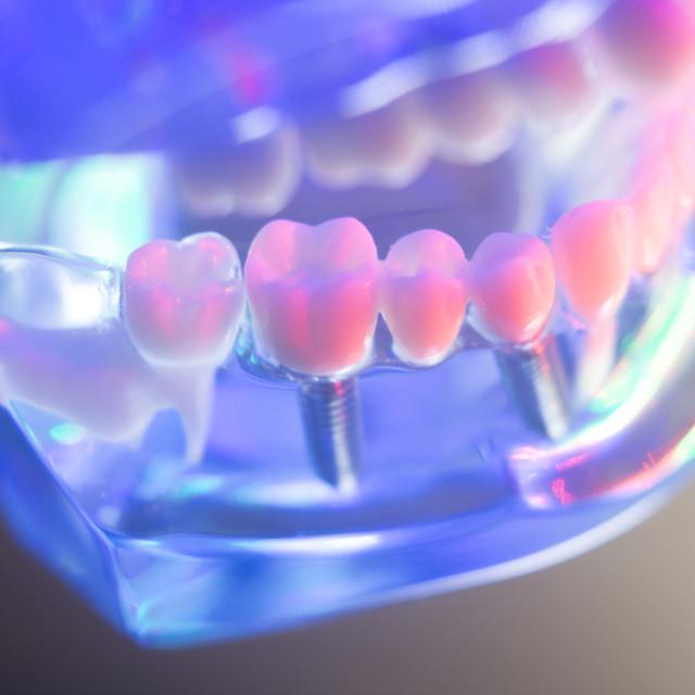 """Dental healthy teeth implants"" stock image"