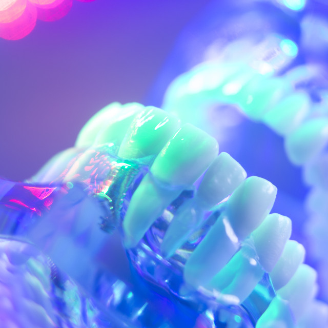 """Dental teeth orthodontic model"" stock image"