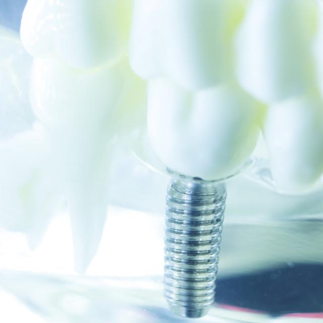 """Dental titanium tooth implant"" stock image"