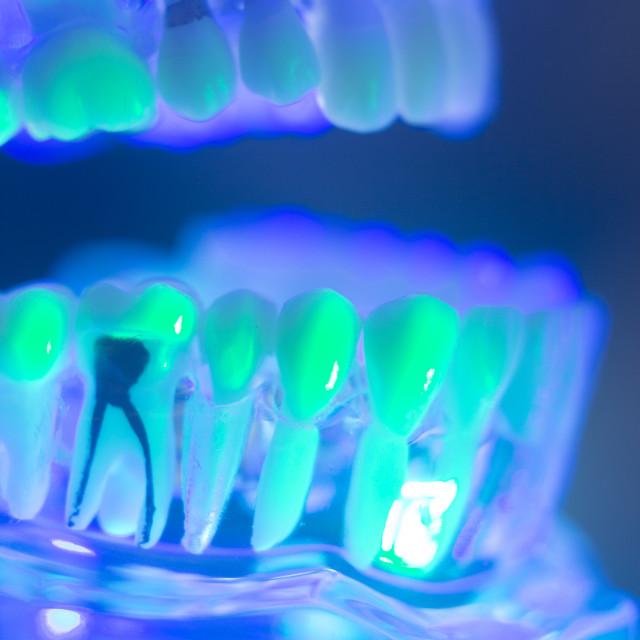 """Dental teeth jaw model"" stock image"