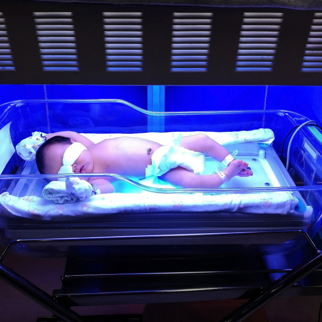 """baby with neonatal jaundice with blue uv light"" stock image"