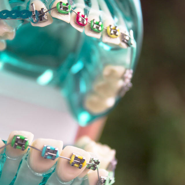 """""""Classic dental metal orthodontics with colored hooks"""" stock image"""