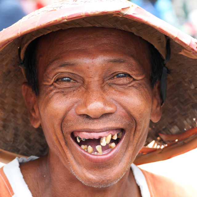 """""""toothless man"""" stock image"""