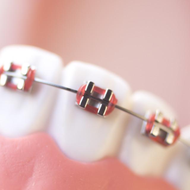"""Cosmetic dental metal brackets"" stock image"