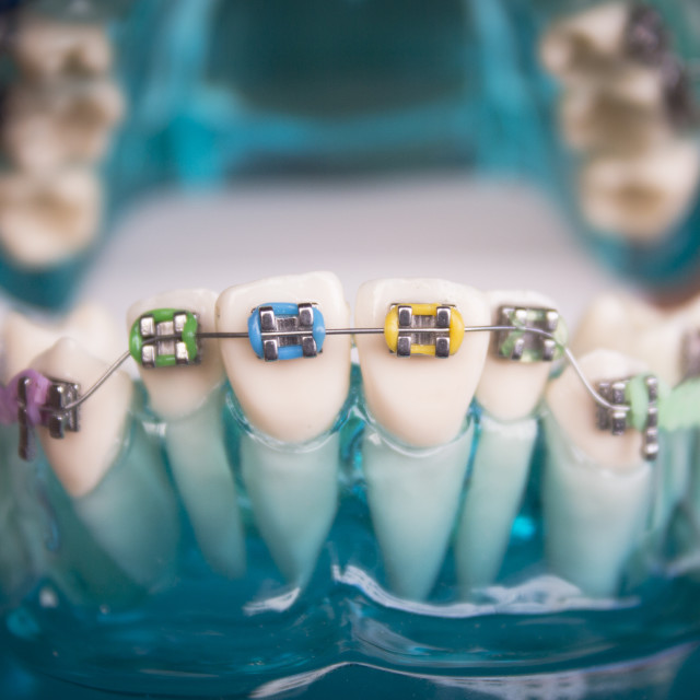 """Classic dental metal orthodontics with colored hooks"" stock image"