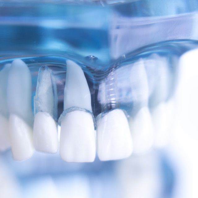 """""""Dentsts dental tooth implant"""" stock image"""