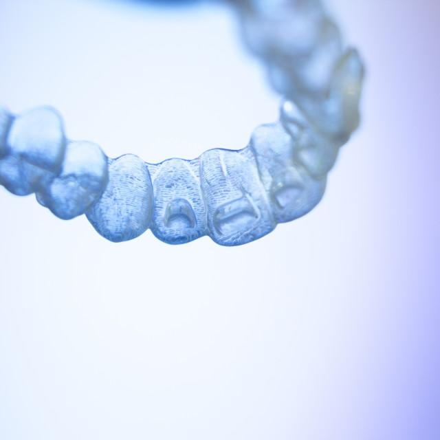 """Invisible teeth aligner bracket"" stock image"